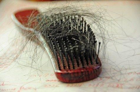 מילוי שיער דליל